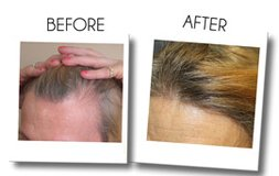 PRP For Hair Loss - Best Treatment For Baldness in Los Angeles, California
