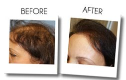 Get Best Hair Loss Prevention Treatment At Beverly Hills in Los Angeles, California