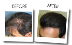 Cost Effective Hair Restoration Surgery At Beverly Hills in Los Angeles, California