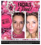 It works! Exfoliating Peel in Yucca Valley, California