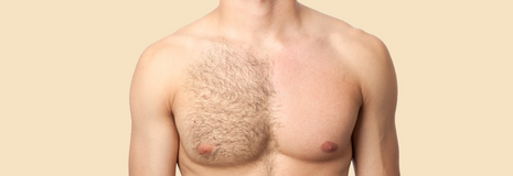 Chest hair removal in Okinawa, Japan
