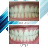 Want whiter teeth?!?! I've got the toothpaste for you! in Kingwood, Texas