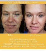 Amazing... Reverse Regimen ... amazing deal for a great product ???? in Joliet, Illinois