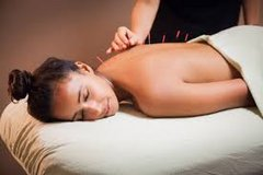 Amazing Acupuncture in Fort Carson, Colorado