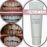 whitening toothpaste in Fort Leonard Wood, Missouri