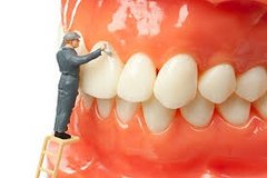 Dental Cleaning Only in Fort Campbell, Kentucky