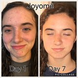 Joyom? Skin Care in Greensboro, North Carolina