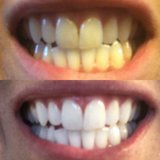 Whitening Toothpaste in Barstow, California