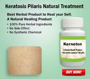 Natural Treatment for Keratosis Pilaris in Cambridge, UK
