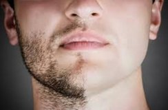 Face hair removal in Okinawa, Japan