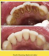 ISO Patient for dental cleaning in Fort Campbell, Kentucky