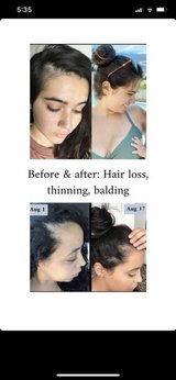 Suffering from hair loss, thinning, & balding?? in Travis AFB, California